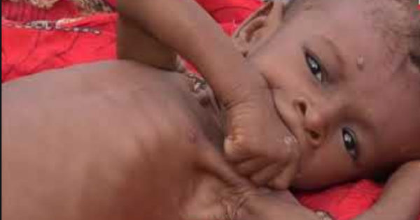 "United Nations warned that next year, ""more than half of all Yemenis will go hungry,"" with ""five million people to be living jus"